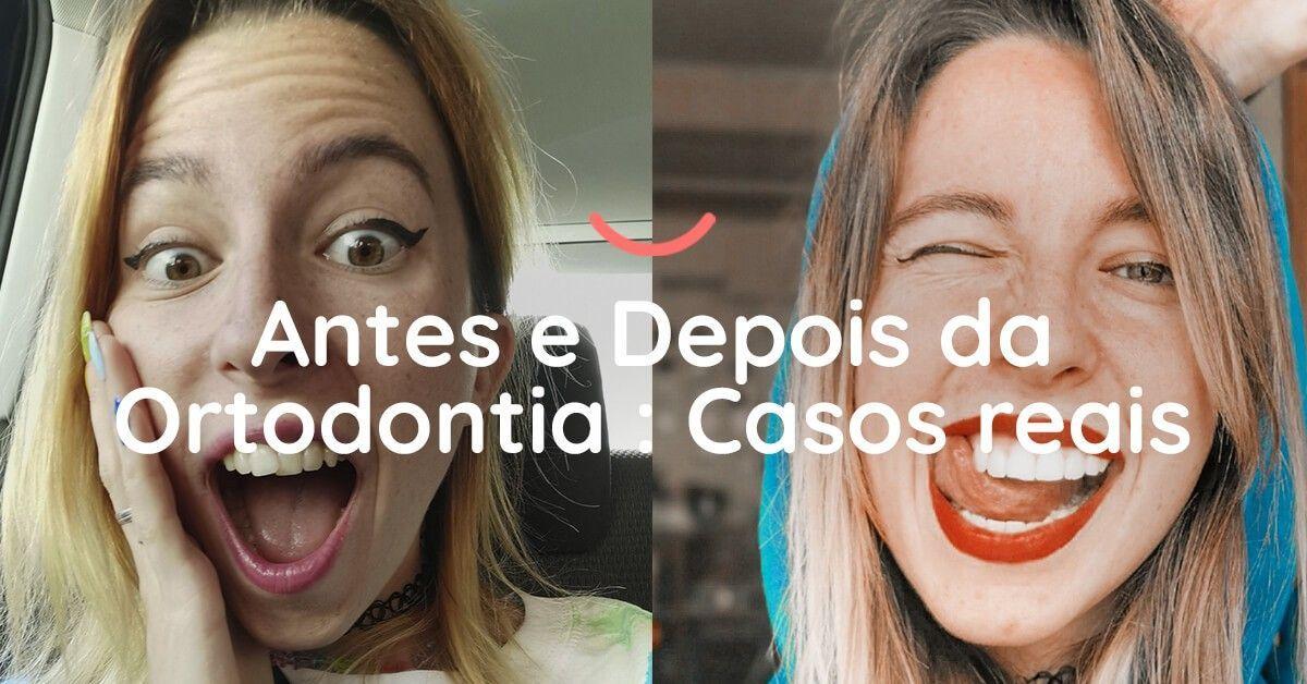 Antes e Depois da Ortodontia | Casos reais